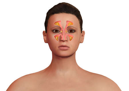 face of woman with nasal sinuses inflamed with sinusitis. Allergic sinusitis and body malaise. 3D rendering