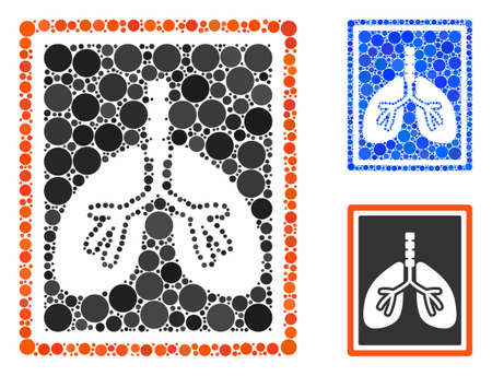 Lungs x-ray photo composition of small circles in variable sizes and shades, based on lungs x-ray photo icon. Vector random circles are organized into blue composition.