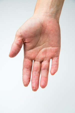 eczema: eczema Stock Photo