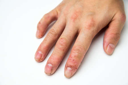 eczema 免版税图像