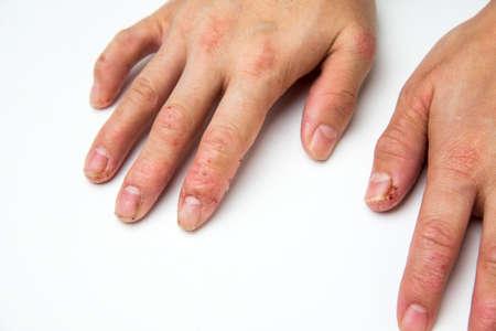 eczema Stockfoto