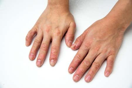 atopic: eczema Stock Photo