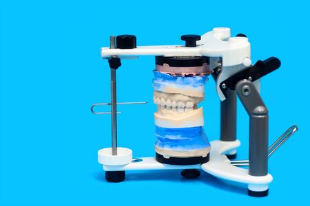 jaw cast in a special medical device on a blue background