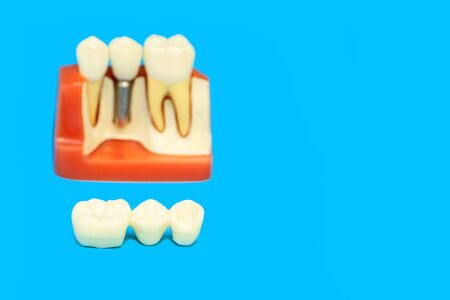 medical model of the jaw with false teeth on a pin on a blue background