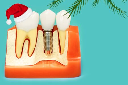 medical model of the jaw with false teeth on a pin in Santa Claus Christmas hat on a blue background