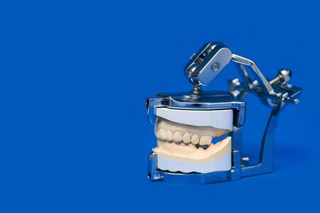 jaw cast in a special medical device on blue background