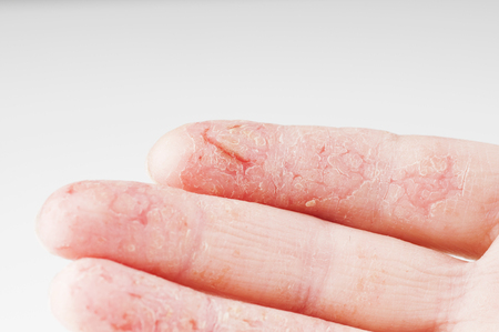 Mano femenina con dermatitis o eczema durante una exacerbación sobre un fondo blanco