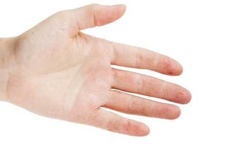 Female hand with dermatitis or eczema during an exacerbation on a white background