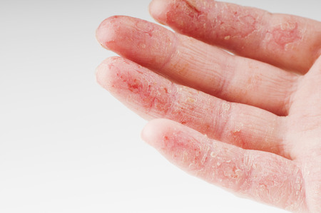 Female hand with dermatitis, exacerbation Stock Photo