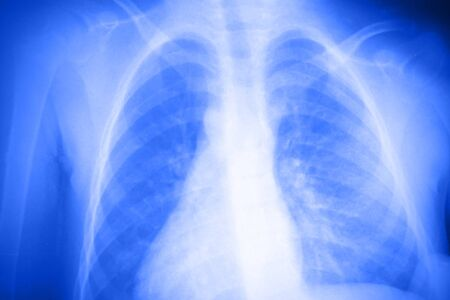 analyses: Lung x-ray Stock Photo