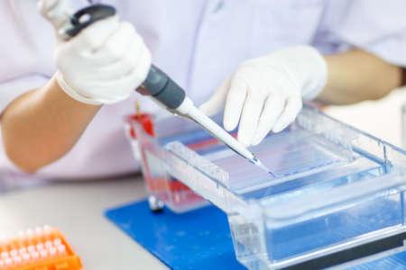 electrophoresis: Woman hand loading samples into  gel for electrophoresis