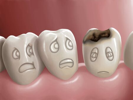 caries dental: Caries dental Foto de archivo
