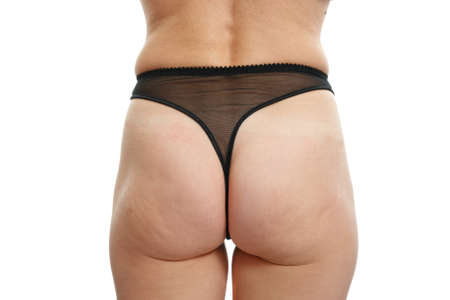 problems with overweight and cellulite, woman buttocks on a white  photo