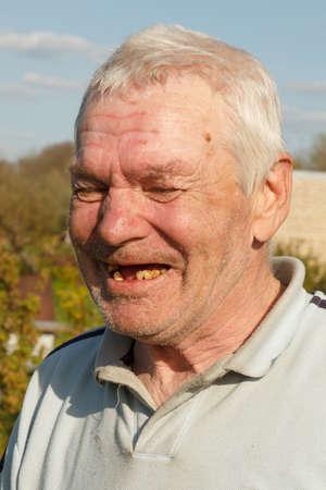 dientes sucios: retrato del verdadero anciano riendo