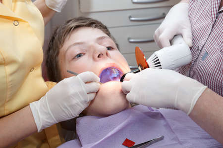 dental caries: dental treatment with dental curing light