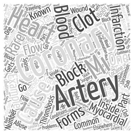 infarction: What causes Myocardial Infarction word cloud concept Illustration