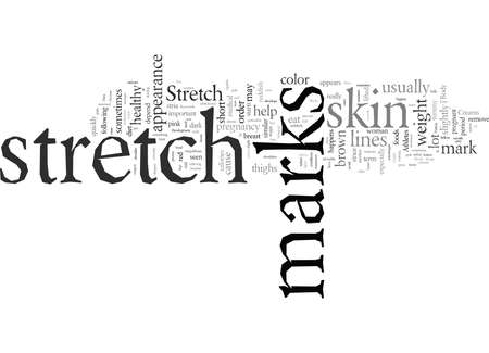Do Not Let Stretch Marks Invade Your Body
