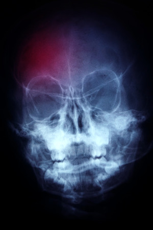 X-ray asian skull (Thai people) and headache photo