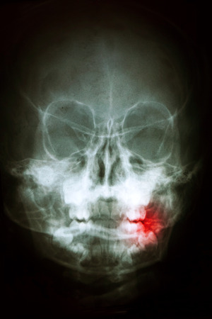 Panoramic dental X-Ray, with red painful area photo