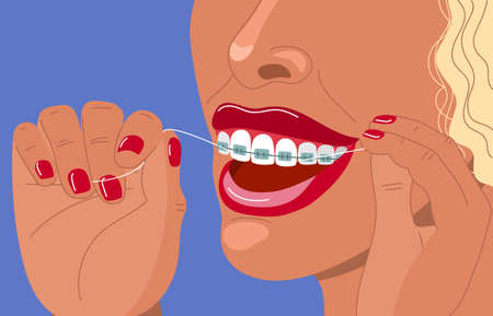 Cute blonde young woman with braces uses dental floss. Daily dental care. Correction of bite and a beautiful smile. Dental health and orthodontics. Stock vector flat hand drawn illustration. Illustration