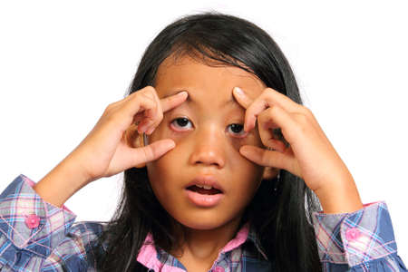 black eye: Little girl looked tired and push her eyes open with her finger isolated on white