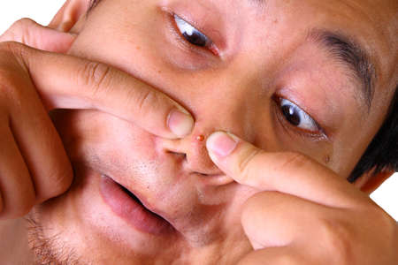 pimples: Asian man squeezing acne on his nose with two fingers Stock Photo