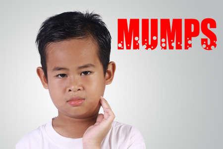 Gesundheitswesen und Medizin. Asiatischer Junge mit Mumps Krankheit seine geschwollenen Wange berühren Standard-Bild - 53724015
