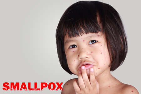 Medical and healthcare concept. Sad crying ill little girl having smallpox Stock Photo