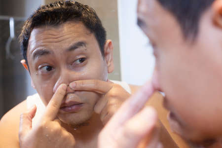 Portrait of attractive young Asian man squeezing acne on his nose, mirror reflection in bathroom Stockfoto