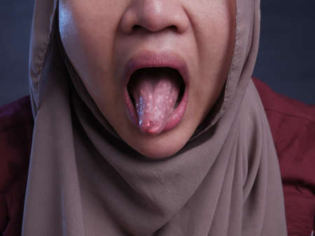 Asian muslim woman wearing hijab shows her tongue, sick person sticking tongue out Stock Photo
