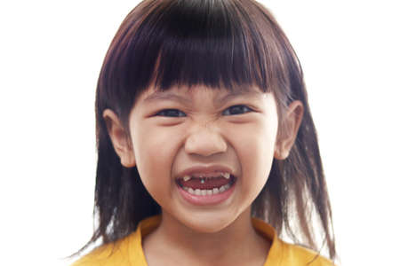 Asian little girl showing her open mouth full of caries teeth decay. Dental medicine and healthcare. caries from an early age due to too many sweet candies