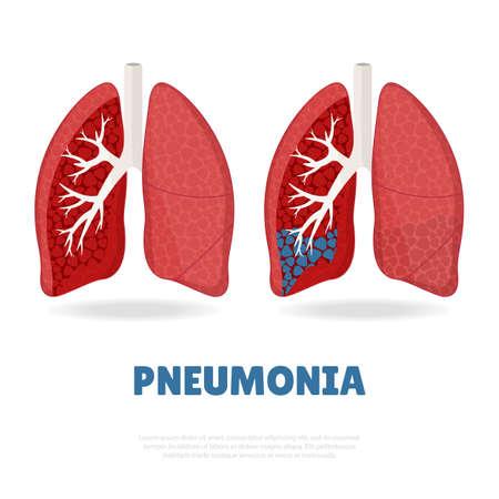 Illustration vectorielle de la journée mondiale de la pneumonie. Vecteurs