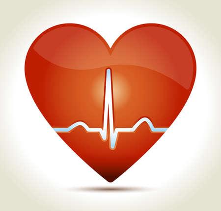 ekg: heart