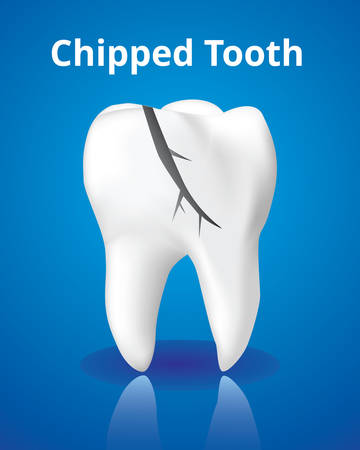 Chipped tooth, Dental care concept, Realistic design illustration Vector. Vector Illustration