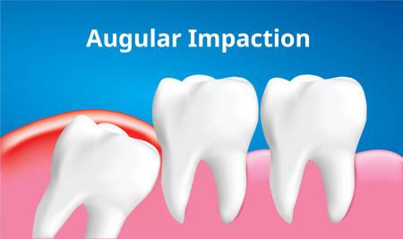 Muela del juicio (impactación angular o mesial) con efecto de inflamación, concepto de cuidado dental, vector de ilustración realista