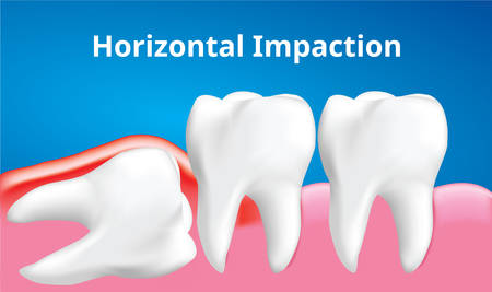 Wisdom tooth ( Horizontal impaction ) with inflammation affect , Dental care concept, Realistic illustration Vector