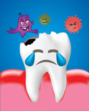 Tooth Decay with Bacteria and Inflamed gum, Dental care concept, Realistic design illustration Vector. Illustration