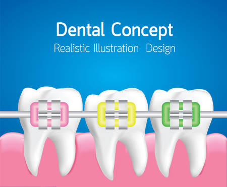Teeth with Colourful braces, Dental care concept, Realistic illustration Vector Illustration