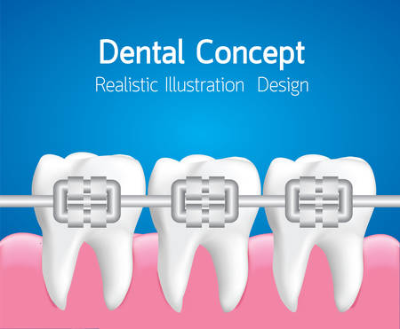 Teeth with Metal braces, Dental care concept, Realistic illustration Vector Illustration
