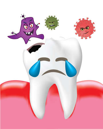 Tooth Decay with Bacteria and Inflamed gum isolated on white background, Realistic design illustration Vector. Ilustrace