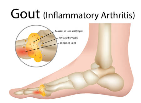 Gout (Inflammatory arthritis) Gout is an intensely painful type of arthritis , Illustration - Vector Vector Illustration