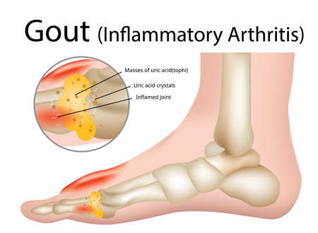 Gout (Inflammatory arthritis) Gout is an intensely painful type of arthritis , Illustration - Vector Stok Fotoğraf - 126810154