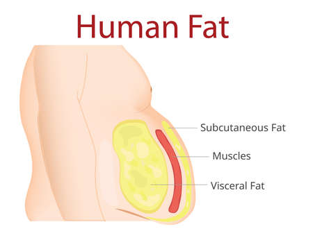 Körperfett, Fettabsaugung, Diät, Operation, Bewegung