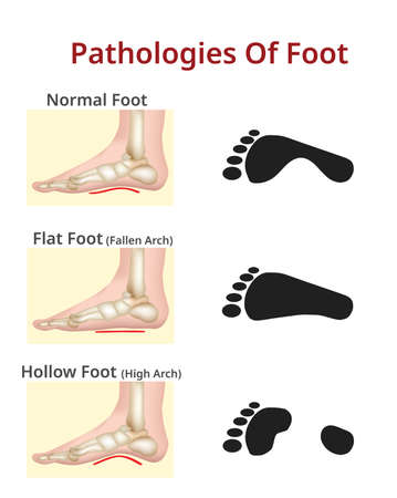 Patologie del piede, Piede normale, piatto e cavo