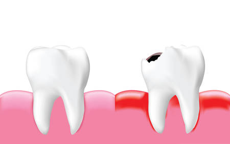 Decay tooth with inflammation and healthy tooth, isolated on white background, Realistic illustration Vector.