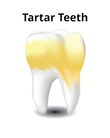 Tartar tooth isolated on white background, Realistic design illustration Vector.