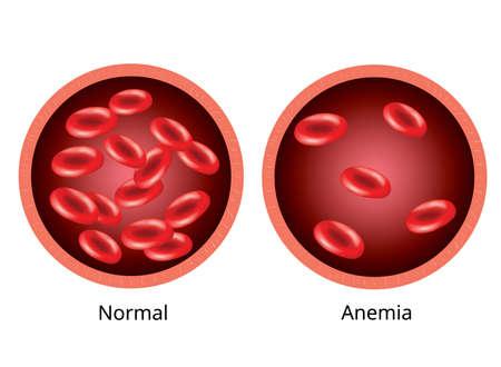 Imagen infográfica, sangre de vasos sanguíneos y humanos sanos con anemia. Ilustración de vector