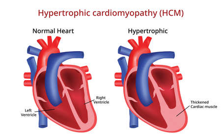 Hypertrophic cardiomyopathy, Heart disease 写真素材