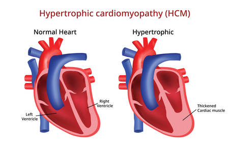 Hypertrophic cardiomyopathy, Heart disease Illustration
