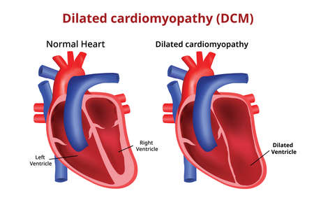 Dilated cardiomyopathy, Heart disease, Vector image Çizim